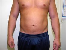Liposuction After Photo by Keith Berman, MD; Staten Island, NY - Case 29333