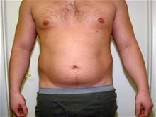 Liposuction Before Photo by Keith Berman, MD; Staten Island, NY - Case 29333