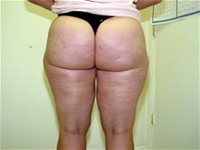 Liposuction After Photo by Keith Berman, MD; Staten Island, NY - Case 29334