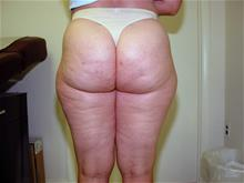 Liposuction Before Photo by Keith Berman, MD; Staten Island, NY - Case 29334