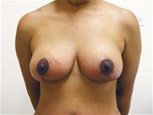 Breast Lift After Photo by Keith Berman, MD; Staten Island, NY - Case 29337