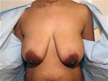 Breast Lift Before Photo by Keith Berman, MD; Staten Island, NY - Case 29337