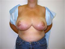 Breast Reduction After Photo by Keith Berman, MD; Staten Island, NY - Case 29339