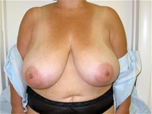 Breast Reduction Before Photo by Keith Berman, MD; Staten Island, NY - Case 29339