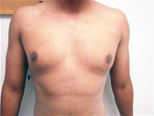 Male Breast Reduction After Photo by Keith Berman, MD; Staten Island, NY - Case 29340