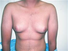 Male Breast Reduction Before Photo by Keith Berman, MD; Staten Island, NY - Case 29340