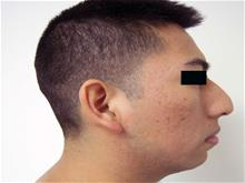Rhinoplasty Before Photo by Keith Berman, MD; Staten Island, NY - Case 29342
