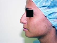 Rhinoplasty Before Photo by Keith Berman, MD; Staten Island, NY - Case 29344