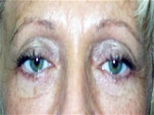 Eyelid Surgery After Photo by Keith Berman, MD; Staten Island, NY - Case 29345