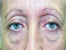 Eyelid Surgery Before Photo by Keith Berman, MD; Staten Island, NY - Case 29345