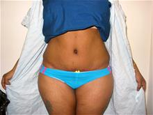 Tummy Tuck After Photo by Keith Berman, MD; Staten Island, NY - Case 29346
