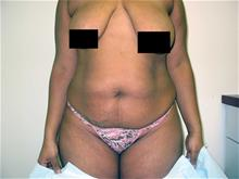 Tummy Tuck Before Photo by Keith Berman, MD; Staten Island, NY - Case 29346