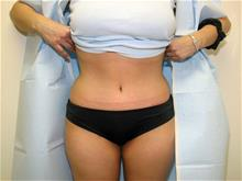Tummy Tuck After Photo by Keith Berman, MD; Staten Island, NY - Case 29347