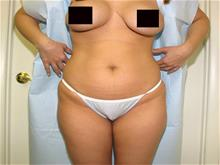 Tummy Tuck Before Photo by Keith Berman, MD; Staten Island, NY - Case 29347