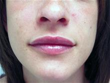 Lip Augmentation / Enhancement After Photo by Keith Berman, MD; Staten Island, NY - Case 29351