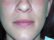 Lip Augmentation / Enhancement Before Photo by Keith Berman, MD; Staten Island, NY - Case 29351