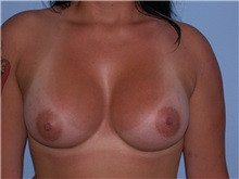 Breast Augmentation After Photo by Gerard Mosiello, MD; Tampa, FL - Case 10521