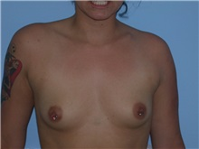Breast Augmentation Before Photo by Gerard Mosiello, MD; Tampa, FL - Case 10521