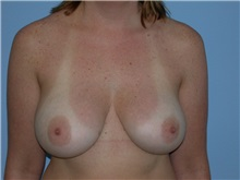Breast Augmentation After Photo by Gerard Mosiello, MD; Tampa, FL - Case 20101