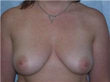 Breast Augmentation Before Photo by Gerard Mosiello, MD; Tampa, FL - Case 20101