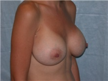 Breast Augmentation After Photo by Gerard Mosiello, MD; Tampa, FL - Case 8311