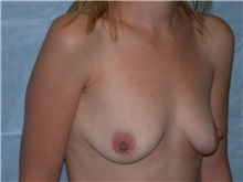Breast Augmentation Before Photo by Gerard Mosiello, MD; Tampa, FL - Case 8311