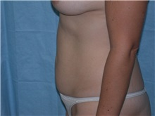 Liposuction Before Photo by Gerard Mosiello, MD; Tampa, FL - Case 9024