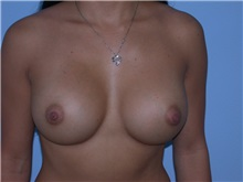 Breast Augmentation After Photo by Gerard Mosiello, MD; Tampa, FL - Case 9814