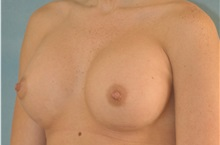 Breast Augmentation After Photo by Steve Vu, MD, FACS; Huntington Beach, CA - Case 33960