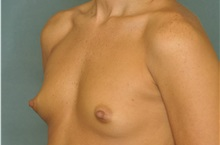 Breast Augmentation Before Photo by Steve Vu, MD, FACS; Huntington Beach, CA - Case 33960
