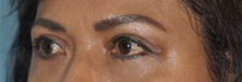 Eyelid Surgery After Photo by Steve Vu, MD, FACS; Huntington Beach, CA - Case 33961