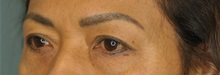 Eyelid Surgery Before Photo by Steve Vu, MD, FACS; Huntington Beach, CA - Case 33961