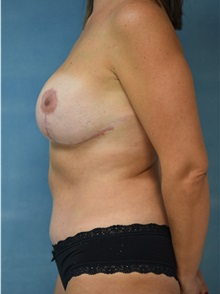 Tummy Tuck After Photo by Steve Vu, MD, FACS; Huntington Beach, CA - Case 33962