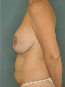 Tummy Tuck Before Photo by Steve Vu, MD, FACS; Huntington Beach, CA - Case 33962