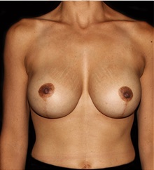 Breast Lift After Photo by Michael Schwartz, MD; Westlake Village, CA - Case 37235