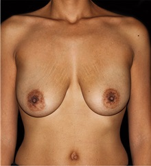 Breast Lift Before Photo by Michael Schwartz, MD; Westlake Village, CA - Case 37235
