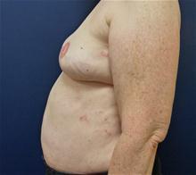 Breast Reconstruction After Photo by Michael Dobryansky, MD, FACS; Babylon, NY - Case 27983