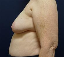 Breast Reconstruction Before Photo by Michael Dobryansky, MD, FACS; Babylon, NY - Case 27983