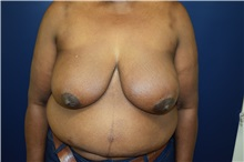 Breast Reconstruction Before Photo by Michael Dobryansky, MD, FACS; Garden City, NY - Case 30294