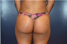 Buttock Lift with Augmentation After Photo by Michael Dobryansky, MD, FACS; Garden City, NY - Case 30296