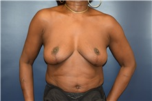 Breast Reduction After Photo by Michael Dobryansky, MD, FACS; Babylon, NY - Case 30297