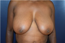 Breast Reduction Before Photo by Michael Dobryansky, MD, FACS; Babylon, NY - Case 30297