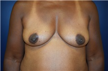 Breast Reconstruction Before Photo by Michael Dobryansky, MD, FACS; Babylon, NY - Case 34940