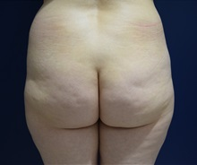 Buttock Lift with Augmentation Before Photo by Michael Dobryansky, MD, FACS; Garden City, NY - Case 34946