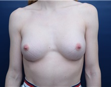 Breast Augmentation After Photo by Michael Dobryansky, MD, FACS; Garden City, NY - Case 36749
