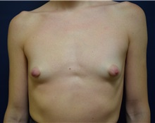 Breast Augmentation Before Photo by Michael Dobryansky, MD, FACS; Garden City, NY - Case 36749