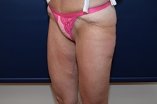 Thigh Lift After Photo by Michael Dobryansky, MD, FACS; Babylon, NY - Case 36765