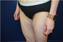 Thigh Lift Before Photo by Michael Dobryansky, MD, FACS; Babylon, NY - Case 36765