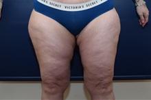 Thigh Lift After Photo by Michael Dobryansky, MD, FACS; Garden City, NY - Case 38361