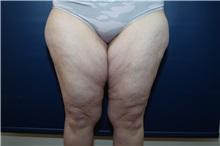 Thigh Lift Before Photo by Michael Dobryansky, MD, FACS; Garden City, NY - Case 38361